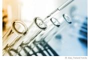 trinkwasseranalyse-wasserprobe